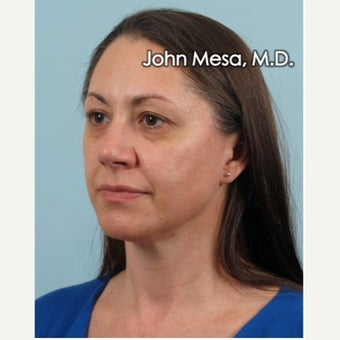 35-44 year old woman treated with Voluma for mid face augmentation before 2014437