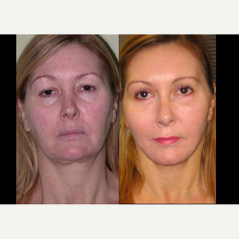 55-64 year old woman treated with Facelift before 3602525