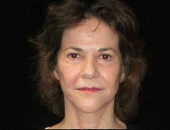 55-64 year old woman treated with Facelift, quad blepharoplasty, filler 2509115