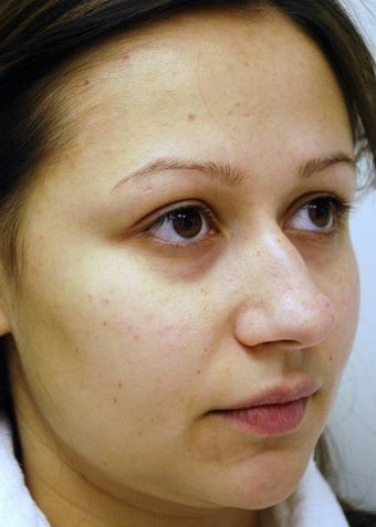 25-34 year old woman treated with Rhinoplasty before 1561434
