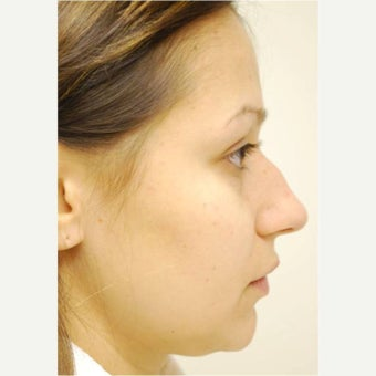 25-34 year old woman treated with Rhinoplasty 1561434