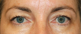 Eyelid Surgery - Blepharoplasty before 889630