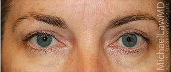 Eyelid Surgery - Blepharoplasty after 889630