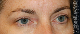 Eyelid Surgery - Blepharoplasty 889630