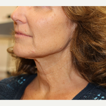 55-64 year old woman treated with Neck Lift before 3837352