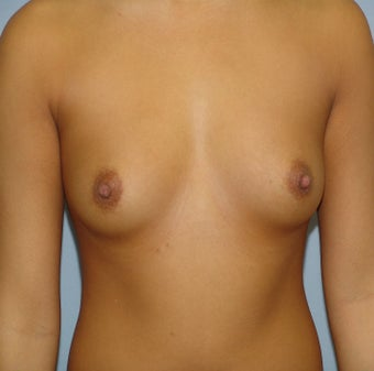 Breast Augmentation, Breast Implants before 1155782