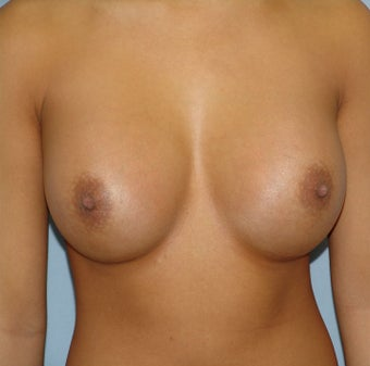 Breast Augmentation, Breast Implants after 1155782