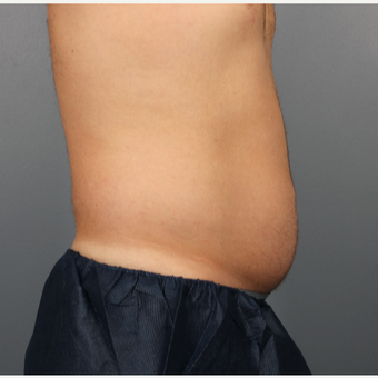 44 year old man treated with CoolSculpting to the Abdomen and Flanks before 3507490