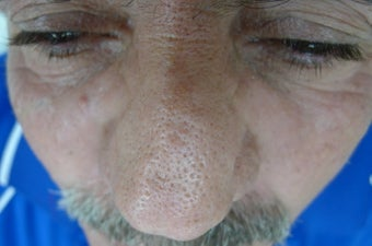 61 year old male with rhinophyma after 1433497