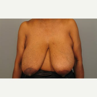 55-64 year old woman treated with Breast Reconstruction before 1981886