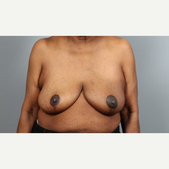 55-64 year old woman treated with Breast Reconstruction after 1981886