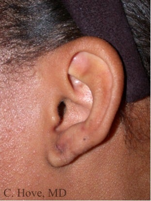 Woman with earlobe keloid scar after 1364367