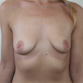 25-34 year old woman treated with Breast Augmentation before 3613604