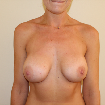 25-34 year old woman treated with Breast Augmentation after 3613604