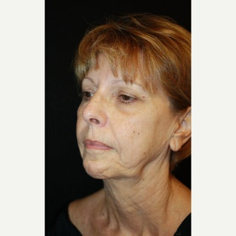 65-74 year old woman treated with Mini Face Lift