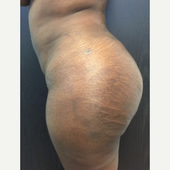 36 year old woman chose to have a Brazilian Butt Lift. after 3039492