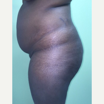 36 year old woman chose to have a Brazilian Butt Lift. before 3039492