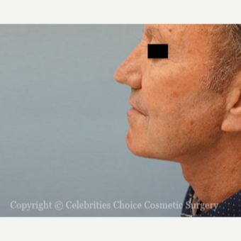 55-64 year old man treated with Facelift after 3426266