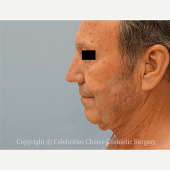 55-64 year old man treated with Facelift before 3426266