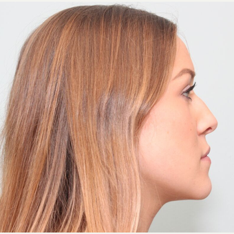 25-34 year old woman treated with Rhinoplasty before 3243501