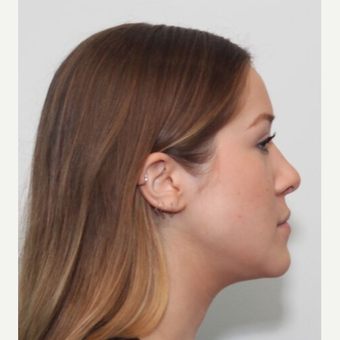 25-34 year old woman treated with Rhinoplasty after 3243501
