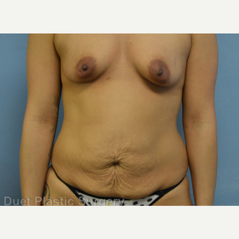 25-34 year old woman treated with Mommy Makeover before 3368211