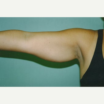 25-34 year old woman treated with Arm Lift before 2073301