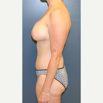 25-34 year old woman treated with Breast Lift with Implants after 3454684