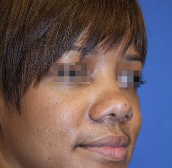 Young woman with bulbous nose treated with rhinoplasty before 821680