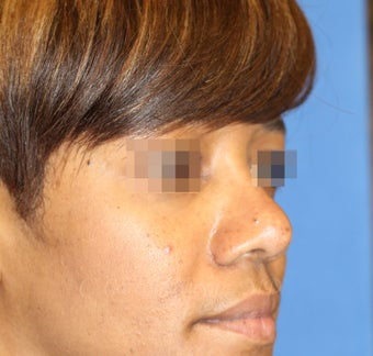 Young woman with bulbous nose treated with rhinoplasty after 821680