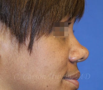 Young woman with bulbous nose treated with rhinoplasty 821680