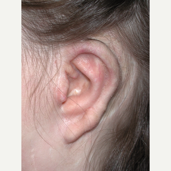 17 or under year old woman treated with Ear Surgery after 3453367