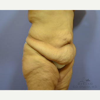 45-54 year old woman treated with Tummy Tuck before 3422062
