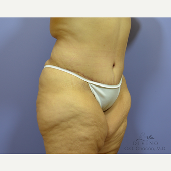 45-54 year old woman treated with Tummy Tuck after 3422062