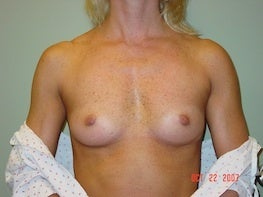 50 yo F 375 HP silicone implant 32A - 32D before 1296479