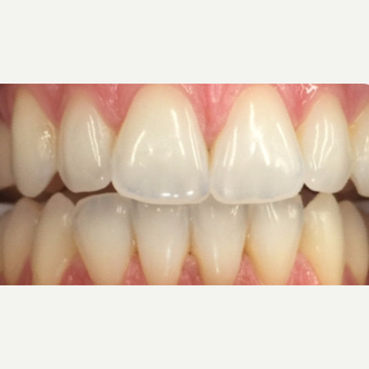 35-44 year old woman treated with Teeth Whitening