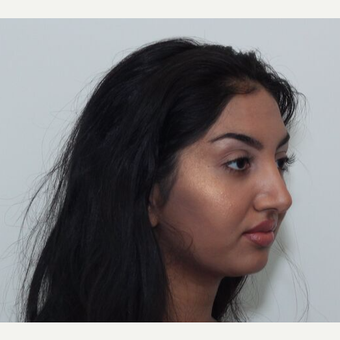 25-34 year old woman treated with Rhinoplasty after 3243453