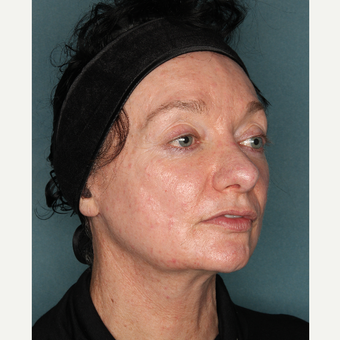 55-64 year old woman treated with Face and Necklift before 3532732