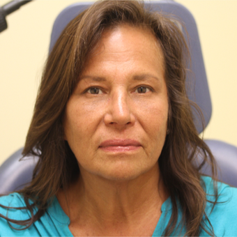 55-64 year old woman treated with Rhinoplasty, Upper Blepharoplasty & Lower Blepharoplasty after 2988900