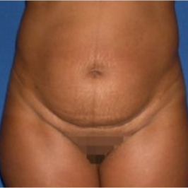 45-54 year old woman treated with Tummy Tuck before 3009745