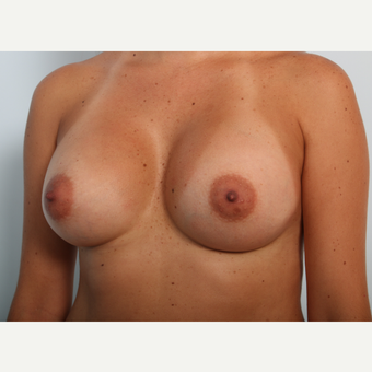 Breast Augmentation after 3425481