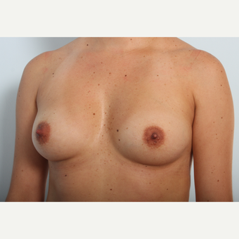 Breast Augmentation before 3425481