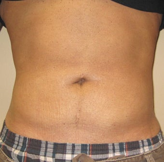 Liposuction of the abdomen after 270068