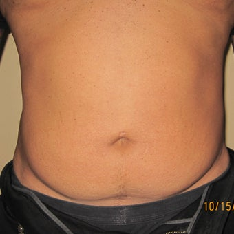 Liposuction of the abdomen before 270068