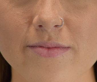 18-24 year old woman treated with Lip Augmentation before 3630499