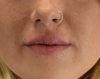 18-24 year old woman treated with Lip Augmentation after 3630499