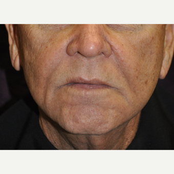 75 and up year old man treated with Juvederm, Restylane & Sculptra after 2881446
