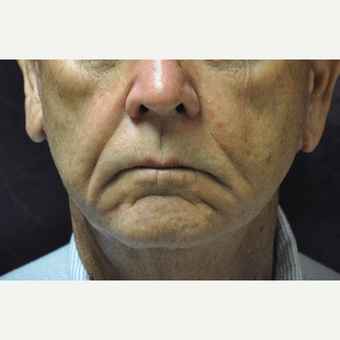 75 and up year old man treated with Juvederm, Restylane & Sculptra before 2881446
