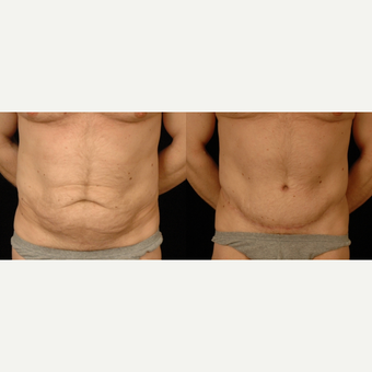 35-44 year old man treated with Tummy Tuck before 3659607