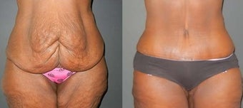 Tummy Tuck before 1143563